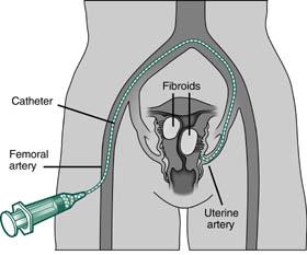 fibromi uterini embolizzazione